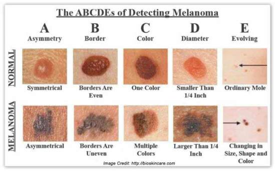 melanoma-cancer-details